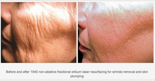 Icon-laser-skin-resurfacing