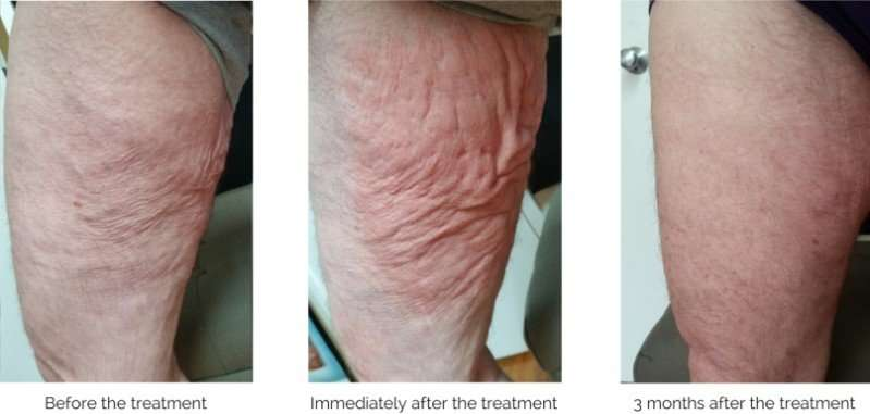 skin-tightening-thigh-results